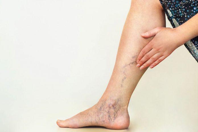 varices celulitis vinculo peligroso