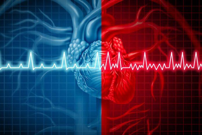 como identificar las enfermedades cardiacas